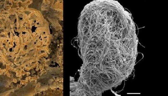 100 milyon yıllık! Dünyanın en eski hayvan spermi bulundu