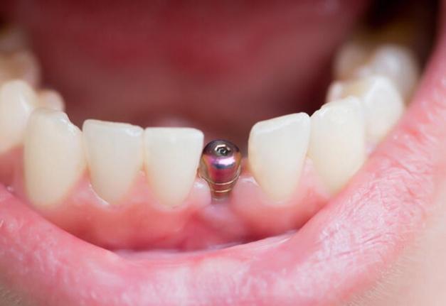 Dişlerimizin Sağlığı