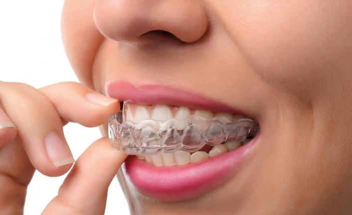 Diş Teli Tedavisi Fiyatları