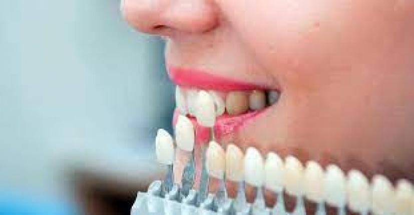 Zirkonyum Diş Kaplama Kullanımının...