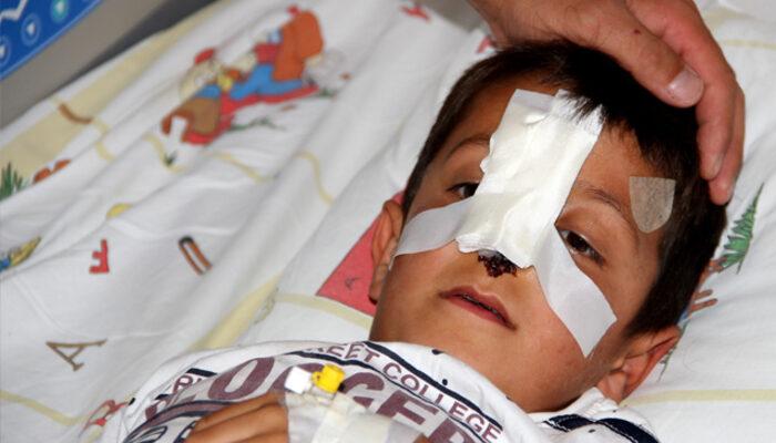 Ağrı'da küçük çocuk dehşeti yaşadı! Köpeklerin saldırısında uğradı