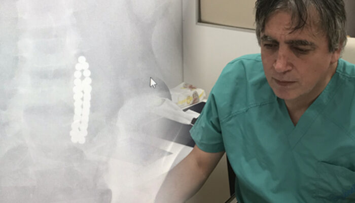 Küçük çocuk karın ağrısıyla hastaneye kaldırıldı! Doktor şoke oldu