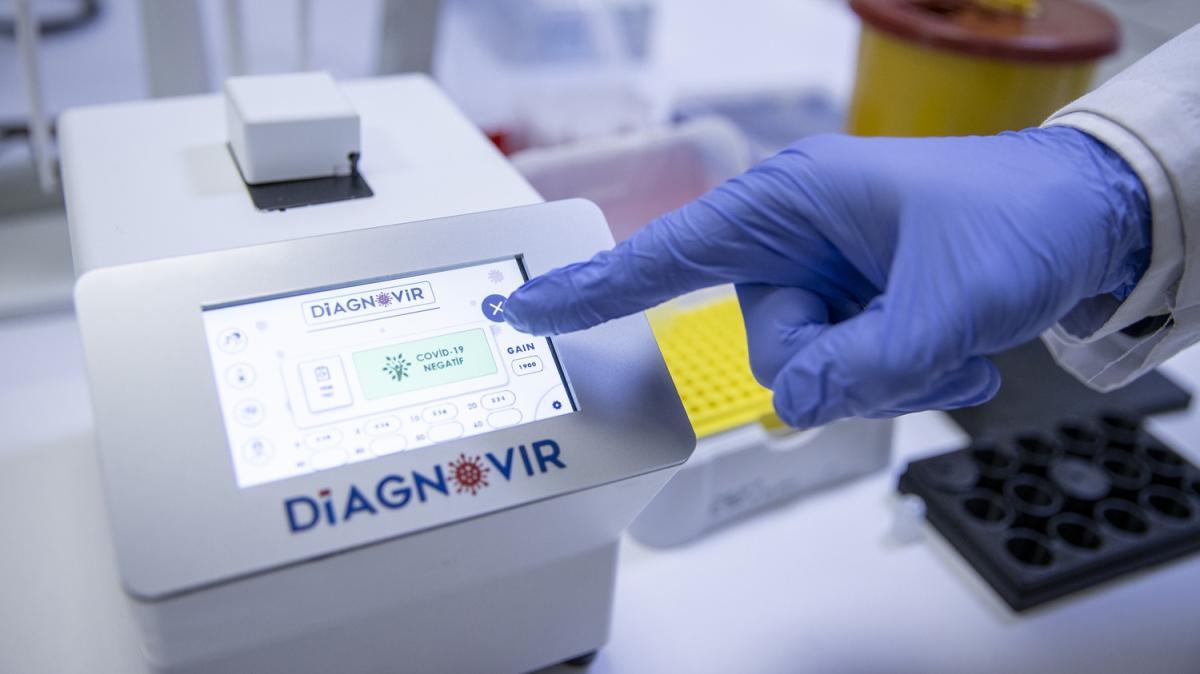 Türk bilim insanları, koronavirüs teşhisini 10 saniyeye düşüren, PCR'ın yerini almaya aday tanı sistemi geliştirdi